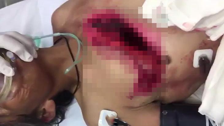 【閲覧注意】牛の角で胸を切り裂かれてしまった男性のグロ動画。