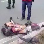 【閲覧注意】バイク事故で脚を切断されてしまった男性のグロ動画。