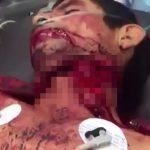 【閲覧注意】首を半分くらい切り開かれてしまった男性の手術映像。