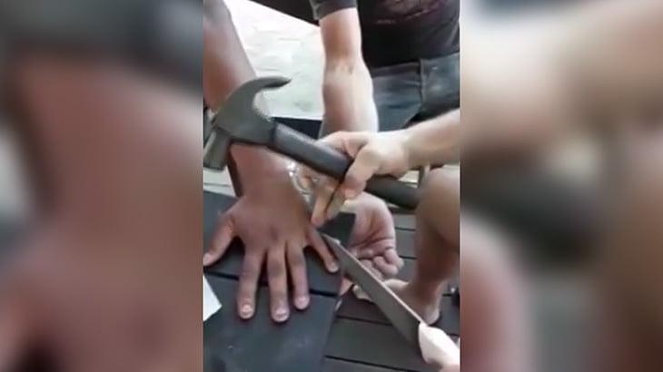 【微閲覧注意】小指のデキモノをナイフで切断してもらう映像。