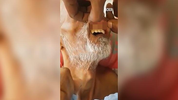 【閲覧注意】歯茎にウジ虫がびっしり蠢くおじいちゃんのグロ動画。