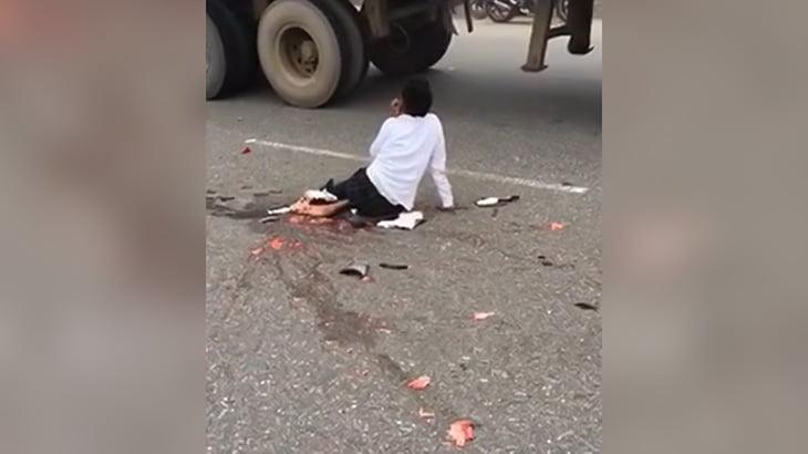 【閲覧注意】事故で放心状態の女性とグチャグチャになった人間のグロ動画。