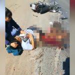 【閲覧注意】事故で両脚が切断された状態で生き延びてしまった女性のグロ動画。