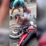 【閲覧注意】バイク事故で左腕が肩から切断されてしまった男のグロ動画。