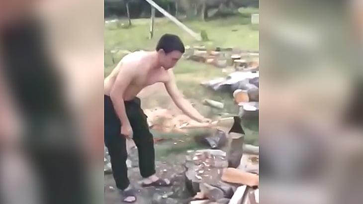 薪割りしてたら肘を脱臼しちゃった男の映像。