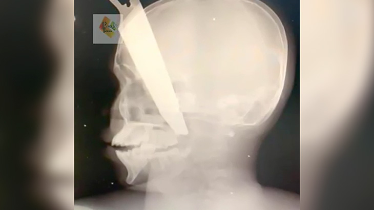 頭にがっつりナイフが突き刺さったものの奇跡的に一命をとりとめた男の映像。