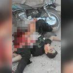【閲覧注意】空爆で下半身を破壊された男性が辛うじて生きているグロ動画。
