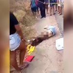 【閲覧注意】バイク事故で右腕が肩から切断されてしまった女性の死体映像。