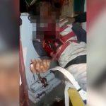【閲覧注意】右目が飛び出た状態で死亡した男性のグロ動画。