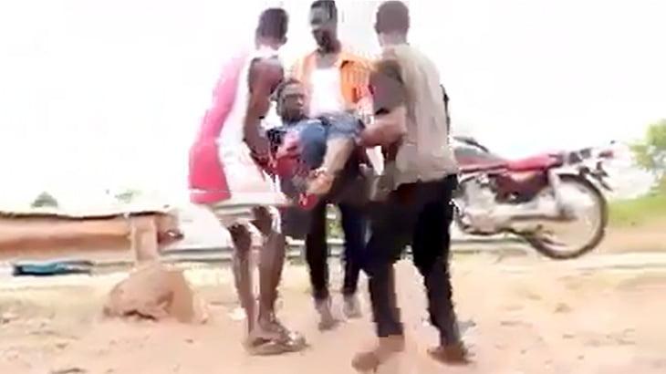 【閲覧注意】バイク事故で右脚が切断されてしまった男性のグロ動画
