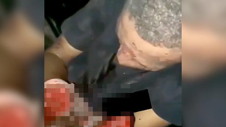 【閲覧注意】マチェーテで両手をグチャグチャにされてしまった男性の映像。