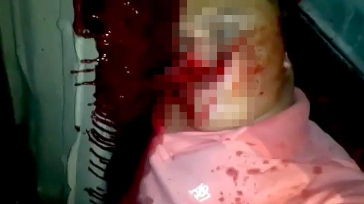 【閲覧注意】15歳の女の子をレイプしていた継父の男が住民たちに殺された死体映像。