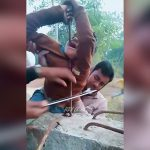 顎に鉄筋が突き刺さってしまった男の子の映像。