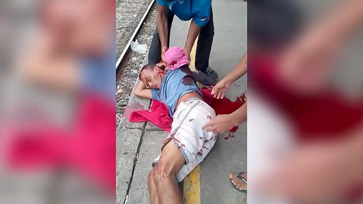 【閲覧注意】駅で飛び込み自殺しようとしたものの左腕切断されて生き残ってしまった男の映像。