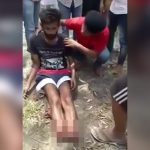 【閲覧注意】両脚を切断されて放心状態の男の映像。