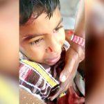 【閲覧注意】バスの窓から右腕を出していて切断されてしまった男の子の映像。