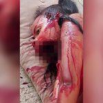 【閲覧注意】家族を銃で殺され、自身も顎を粉砕されてしまった女の子のグロ動画。