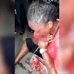 【閲覧注意】銃で撃たれて口を破壊されてしまった女性の映像。