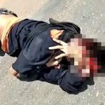 【閲覧注意】バイク事故で頭が割れて死んだ男性の死体映像。