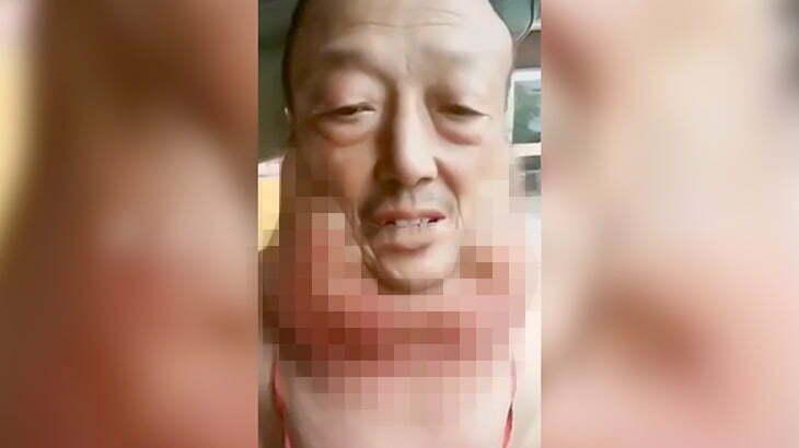 首が異様に腫れ上がってしまった男性の映像。
