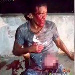 【閲覧注意】ナイフで刺された腹から腸が飛び出してしまった男の映像。