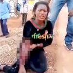 グレネード弾で右腕をグチャグチャにされてしまった女性の映像。