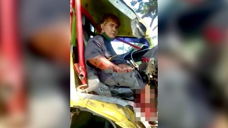 【閲覧注意】事故で右脚がグチャグチャになってしまったドライバーの映像。