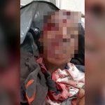 【閲覧注意】銃で頭を撃たれて殺された男の死体映像。