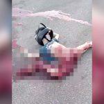 【閲覧注意】バイク事故で右脚グチャグチャ、腸が剥き出しになってしまったグロ動画。