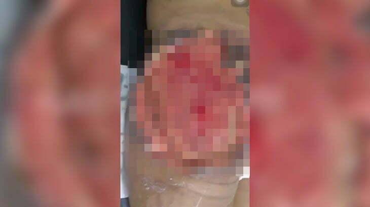 【閲覧注意】注入したシリコンのせいでお尻が壊死してしまった女性の映像。