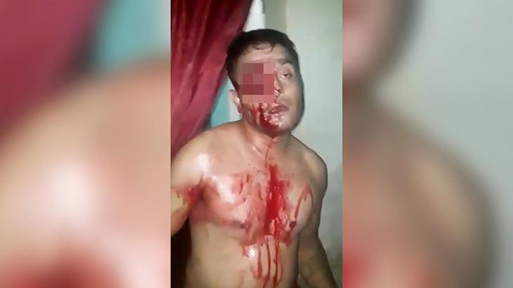 【閲覧注意】右目をナイフで刺されてしまった男性の映像。