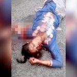 【閲覧注意】事故で左腕をちぎられてしまった女性の映像。