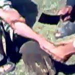 【閲覧注意】切断された左腕を熱した油で揚げて止血される男の映像。