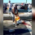 【閲覧注意】事故で左脚を切断されてしまった女性の映像。