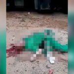 【閲覧注意】事故で身体があらぬ方向にねじ曲がった男性の死体映像。