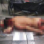 【閲覧注意】サメに噛みつかれて顔が剥がれてしまった男性の死体画像。