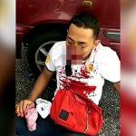 【閲覧注意】事故で口がズタズタになってしまった男の映像。