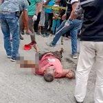 【閲覧注意】感電して左腕が焼け切れてしまった男性の死体映像。