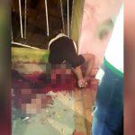 【閲覧注意】バイク事故で頭が割れて脳がごっそり飛び出てしまったグロ動画。
