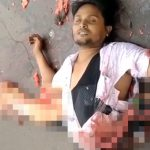 【閲覧注意】事故で下半身が切断されてグッチャグチャになった男性のグロ動画。