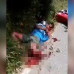 【閲覧注意】バイク事故で左脚がボキボキに折れてしまった男性の映像。