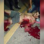 【閲覧注意】バイク事故で左脚と左腕を負傷した男性が苦しむ映像。
