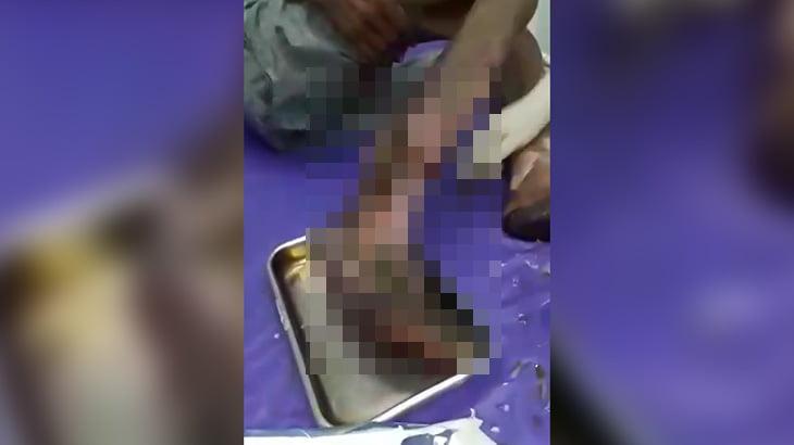 【閲覧注意】右足が腐ってしまった男性のグロ動画。