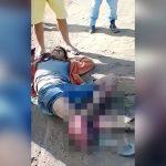 【閲覧注意】事故で脚が折れて骨が飛び出してしまった男性の映像。