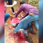 【閲覧注意】バイク事故で右脚折れちゃった男性の映像。