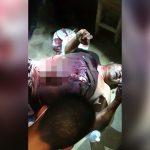 【閲覧注意】刺された腹から内臓が飛び出してしまった男性のグロ動画。