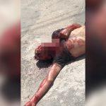【閲覧注意】喉を刺された男性が苦しそうな声を上げる映像。