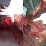 【閲覧注意】マチェーテで殺された男性の死体を病院で撮影したグロ動画。