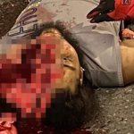 【閲覧注意】バイクの男性がトラックと衝突して顔が縦に割れてしまったグロ動画。