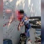 【閲覧注意】バイク事故で頭を地面に強打して死んだ男性の死体映像。